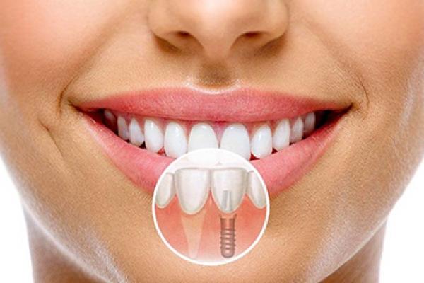 implantaciya1361A9E77-F796-0A63-E249-BD60E756B20E.jpg