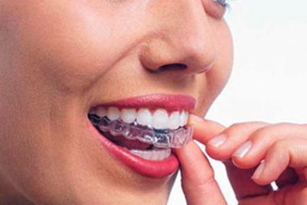 ortodontiya5FF60017-2379-ACB2-48C7-494647D7190D.jpg
